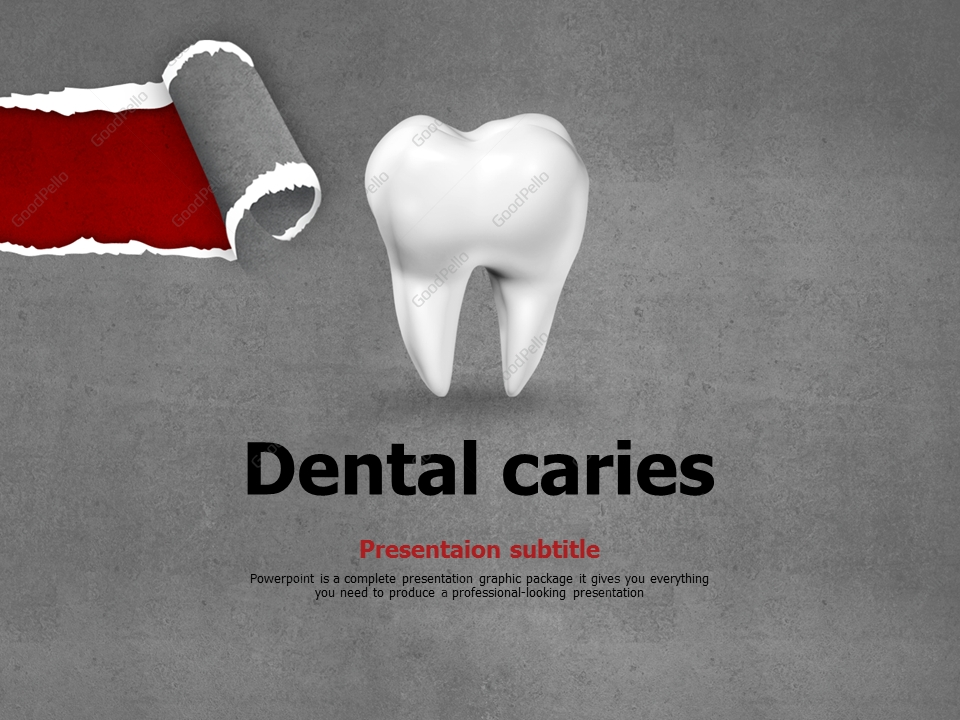 Dental Caries Ppt Goodpello